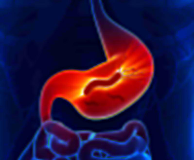 gastroesophageal-reflux-disease