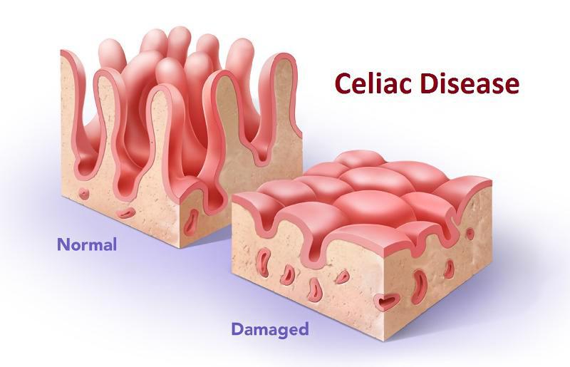 celiac-disease