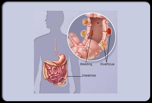 diverticular-disease-3