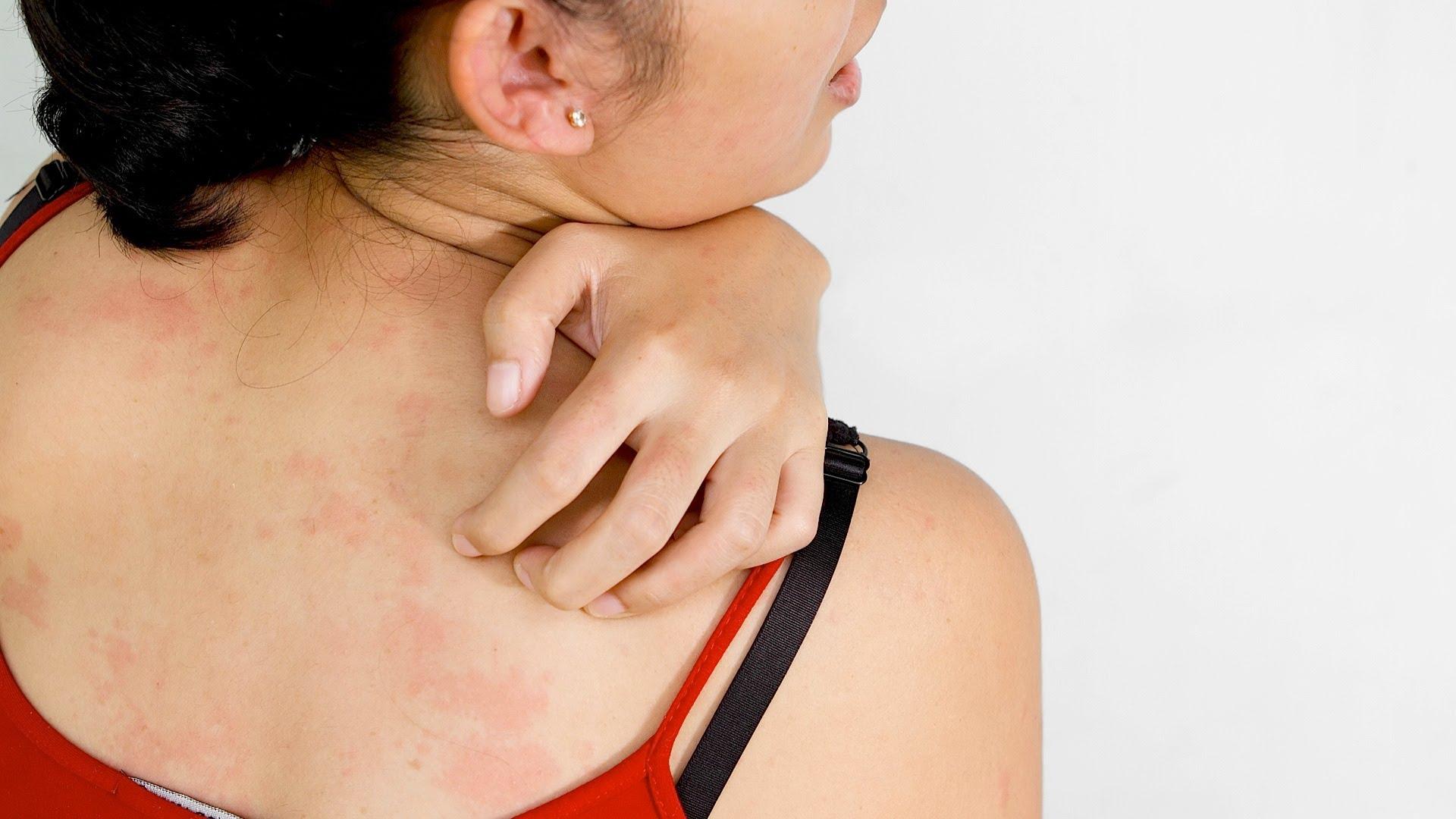 skin-itchiness