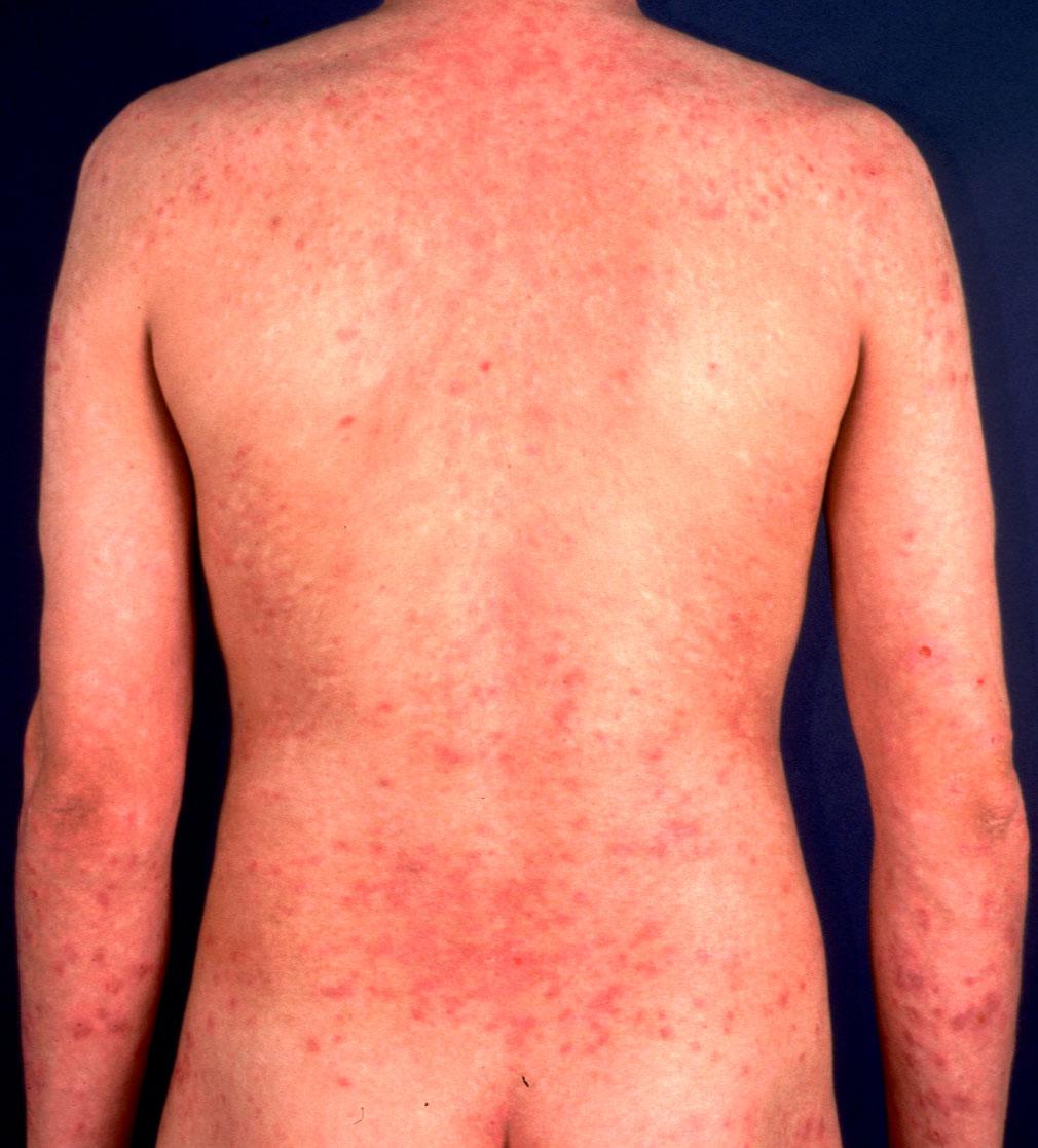 allergic-contact-dermatitis